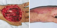 Private Neil McCallion's injured hand, before and after surgery