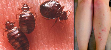 Bedbugs and their bites