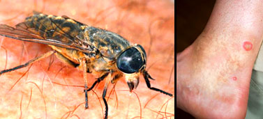 UK insects that bite or sting - Live Well - NHS Choices - photo#14