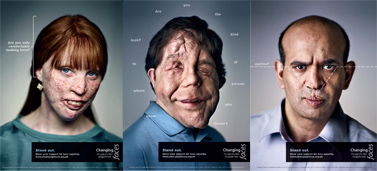 Changing Faces awareness campaign poster