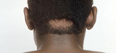 keloid scar steroid cream