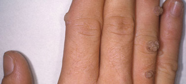 Urticaria hives nhs choices for Fish eye wart