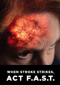 When Stroke Strikes, Act F.A.S.T.
